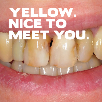 Yellow. Nice to meet you.
